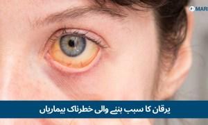یرقان کی علامات : 5 ایسی خطرناک بیماریاں جن کی وجہ سے یرقان کی علامات ظاہر ہوتی ہیں