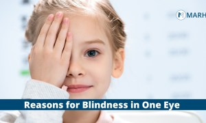 Blind in One Eye: Causes and Treatment
