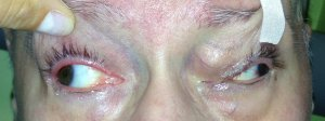 Paralytic Strabismus 1