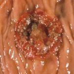 Adenocarcinoma_Colon_Cancer_Maria_Iranzo_Biotec