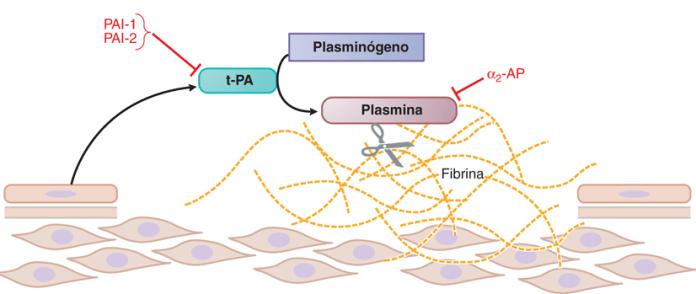 Ictus_Isquemia_Cerebral_Biotecnologia_Maria_Iranzo_Biotec