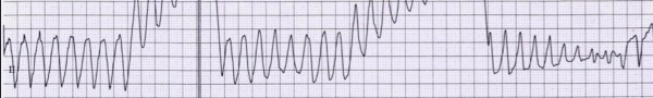 Qtc, metadone, tachicardia ventricolare