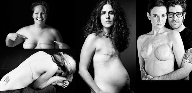Supervivientes del cáncer de mama