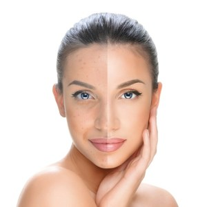 Chemical-peel-galway