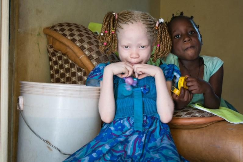Winfrida (22) en Judith (8) komen uit een gezin van 9 kinderen en alleen zij beiden zijn albino's. Na de geboorte van Judith heeft de vader het gezin verlaten. Het gezin woont in Mwanza in een huis met een hek eromheen zodat de meisjes redelijk veilig zijn. Judith zit op een priveschool die door het Liliane Fonds wordt betaald. Beide meisjes hebben veel last van de zon en alleen met een zonnebril op, kunnen ze buiten hun ogen opem houden.