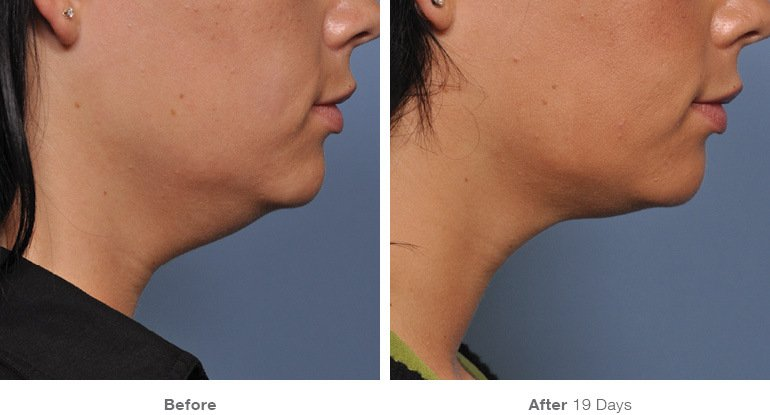 Ultherapy: Extreme Results Without Surgery to Remove Facial Wrinkles