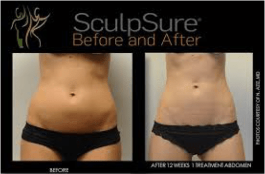 CoolSculpting vs  SculpSure: Paragon Plastic Surgery & Med Spa in