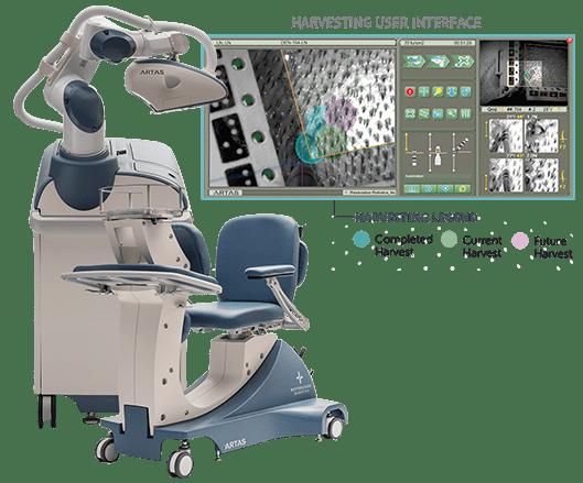 ARTAS Robotic System