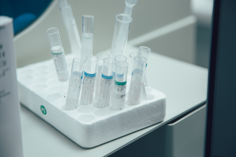 types of test tube racks and 10