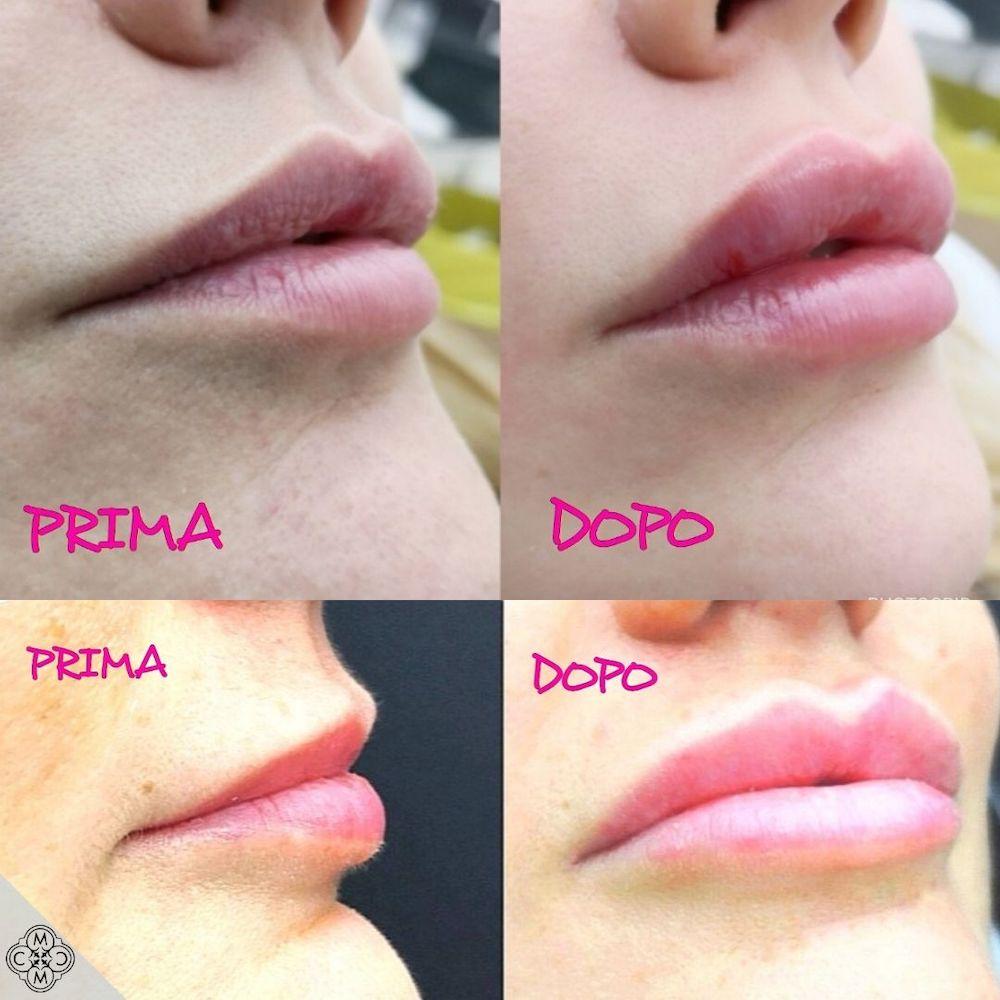 aumento delle labbra 160320 1