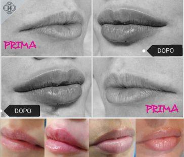 aumento delle labbra 160320 4