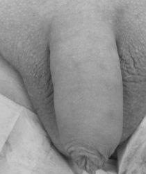 Risultato subito dopo l'impianto del grasso