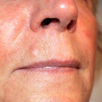 , FELC – Rimozione neoformazioni da labbro – Foto Prima e Dopo