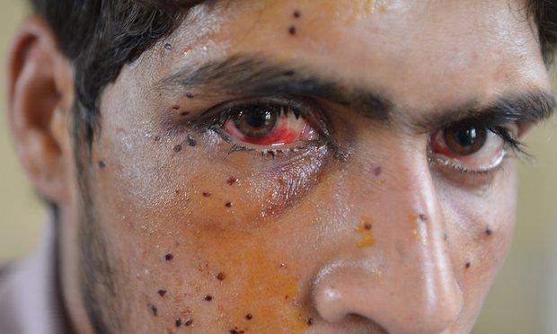 کشمیر: پیلٹ گن سے زخمی ہونے والا ایک کشمیری ۔ ۔ فوٹو۔ گارڈین