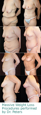 Massive Weight Loss procedures