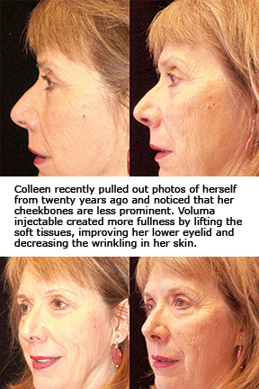 Dr  Mary Lee Peters: JUVEDERM VOLUMA XC: The New Injectable for