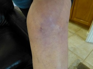 My knee 11 days post op.  A little purple and swollen with various small incisions