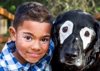 boy and dog became friend