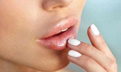 hidratante de labios