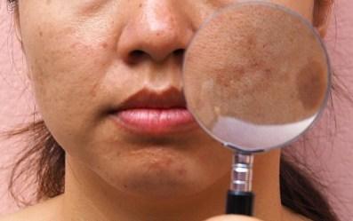 Por Qué Sale Paño o Melasma en la cara y como quitarlo