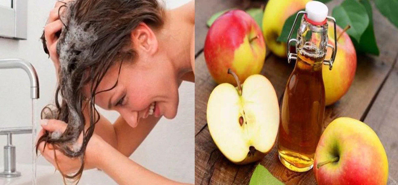 vocal Lejos procedimiento  ▷ Vinagre de Manzana Para El Cabello 【 Caspa, Hidrata, Nutre, Brillo 】