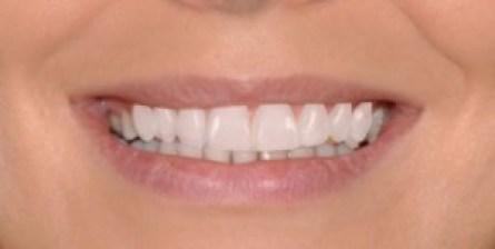 Sonrisa final