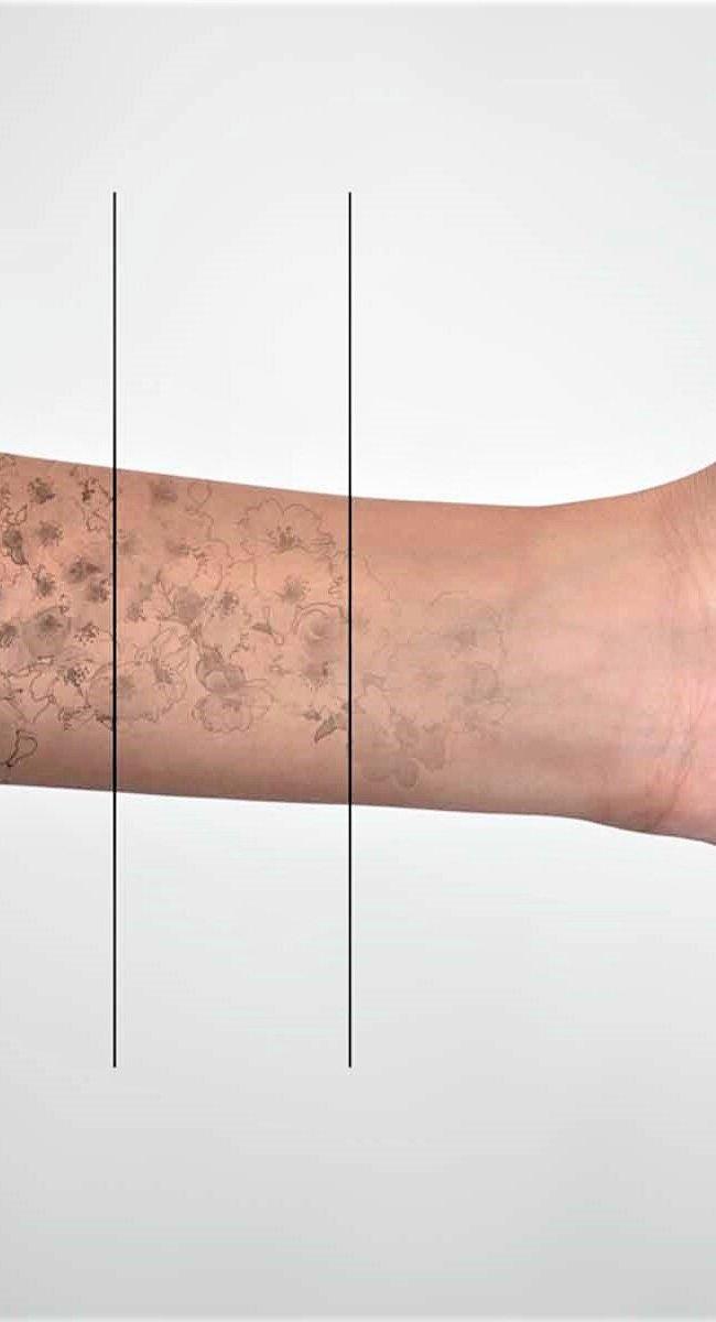 Cómo eliminar tatuajes eficazmente láser