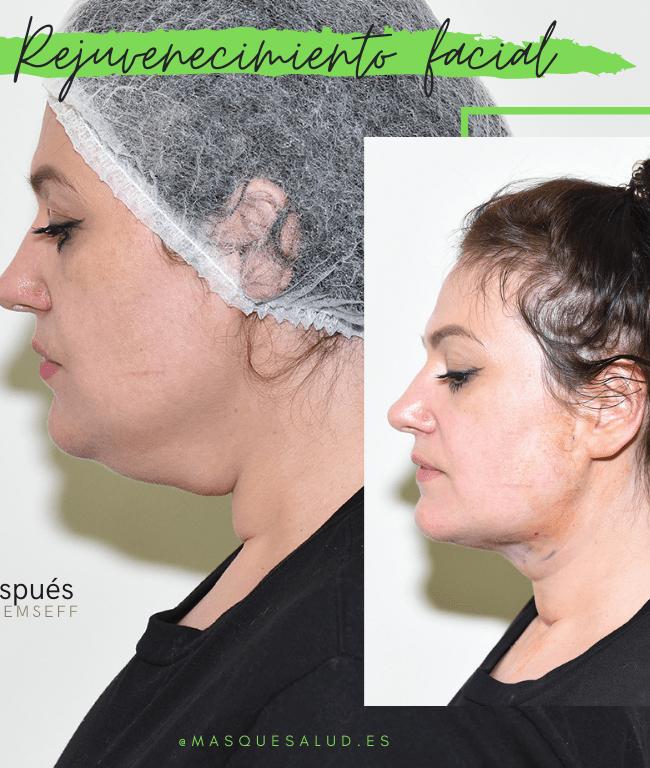 rejuvenecimiento facial con recuperación inmediata mas que salud-min