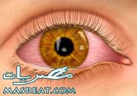 التهاب الملتحمة الفيروسي في العين