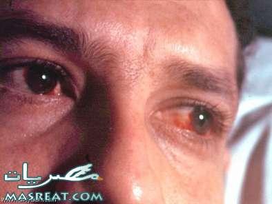 حقيقة مرض ملتحمة العين في مصر