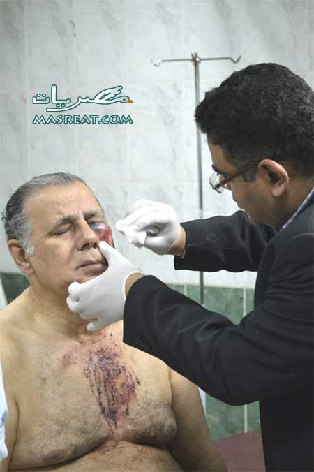 صورة ابو العز الحريري بعد الاعتداء عليه وضربه