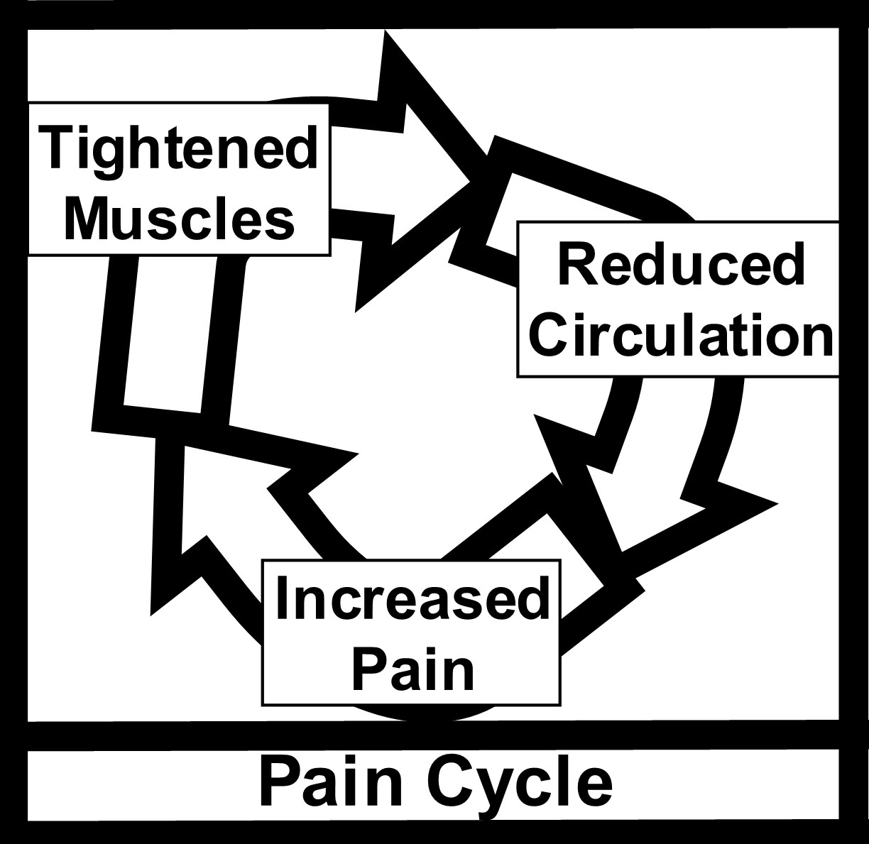 Ideas About Referred Pain