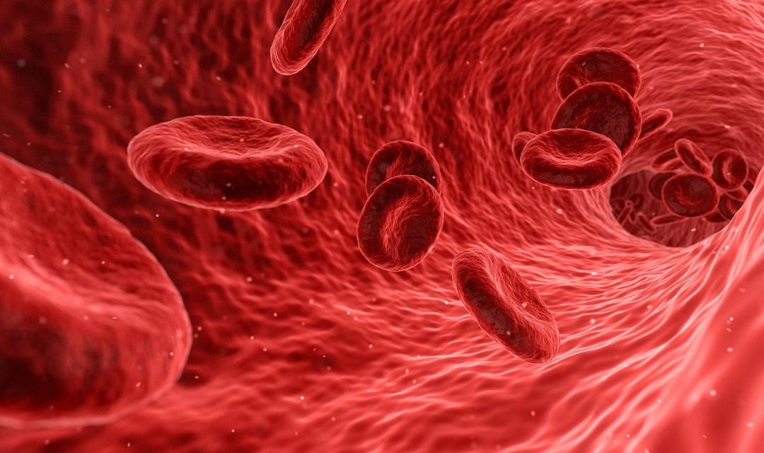 ¿Qué es la cardiopatía isquémica?