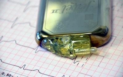 Unidad de Electrofisiología Cardíaca