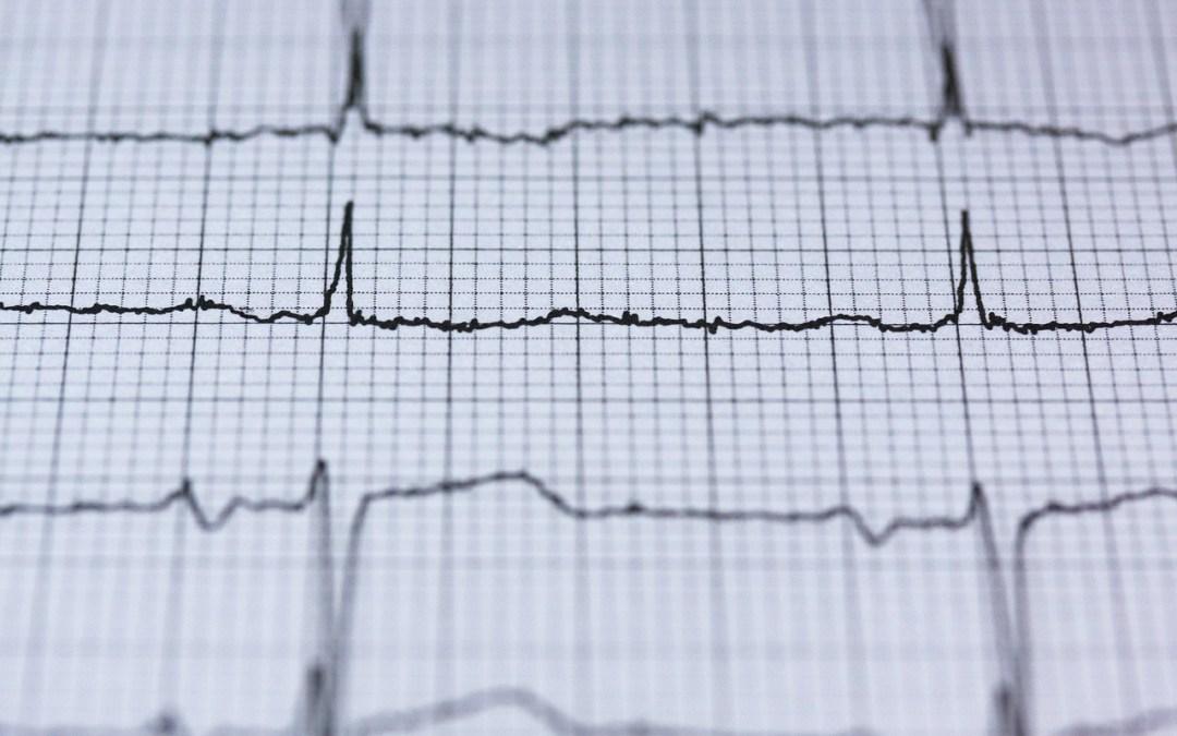 ¿Qué es un infarto?