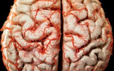 ¿Qué es un Accidente Cerebrovascular (Ictus)?