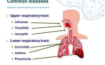 Infeksi Saluran Pernafasan Atas – Gejala Pengobatan Dan Perawatan