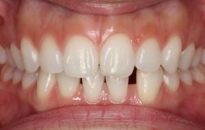 豊中 ますだ歯科医院でのホワイトニング治療後