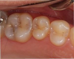 自分では分からない隠れた虫歯 レントゲンでないと分かりません