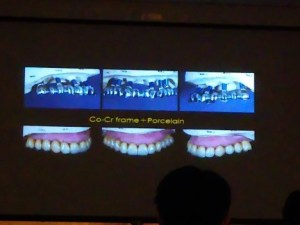 豊中市 勉強会 歯科