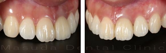 前歯へのインプラント治療 治療後