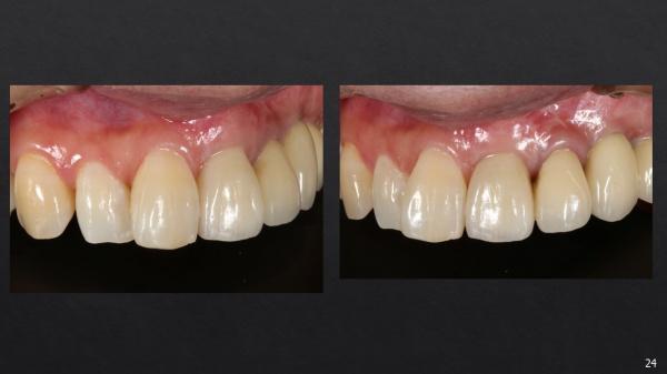 インプラント治療後 前歯