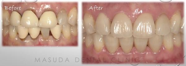 セラミック治療 審美歯科 豊中市の歯医者 ますだ歯科医院