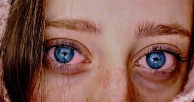 Επιπεφυκίτιδα - Μια πάθηση των οφθαλμών γνωστή ως 'κόκκινο μάτι