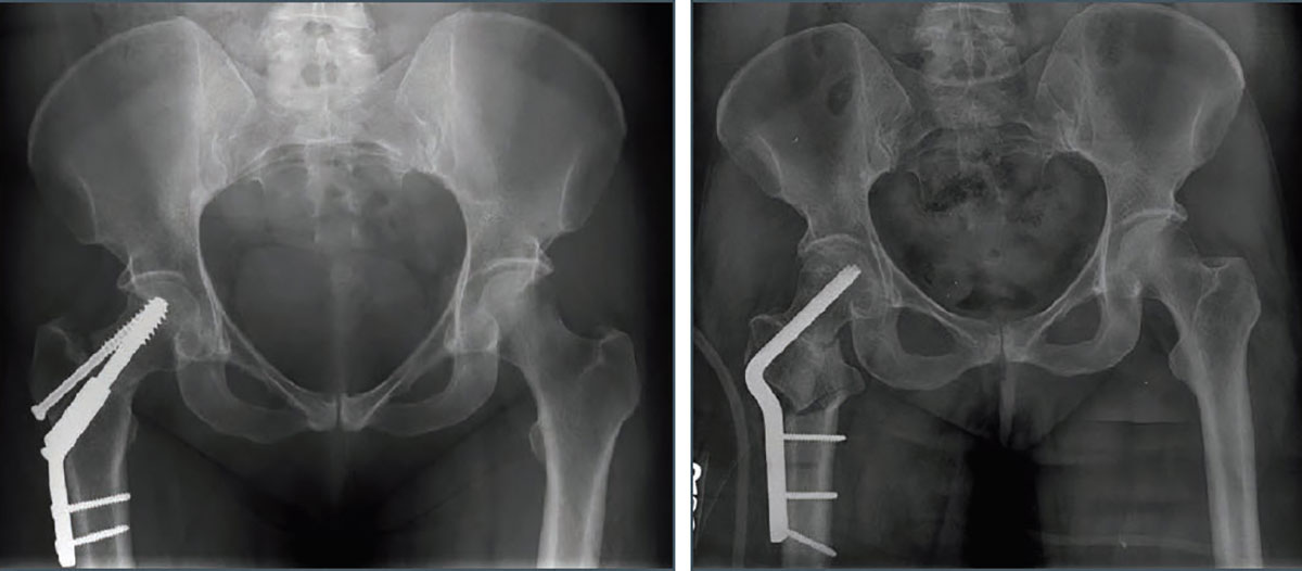 Stress Fracture Femoral Neck