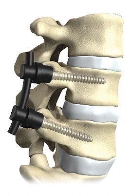 Spinal Disorder Products - Matrix Medical Innovations
