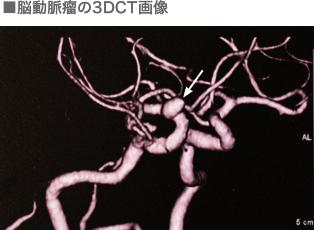 脳動脈瘤の3DCT画像