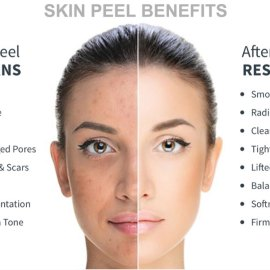 CHEMICAL PEELING For Women and Men