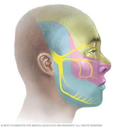 Image result for Trigeminal neuralgia