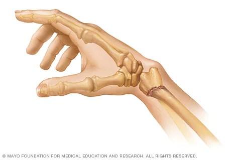 الرسغ المكسور الأعراض والأسباب Mayo Clinic مايو كلينك